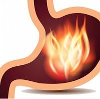 Tien tips tegen brandend maagzuur
